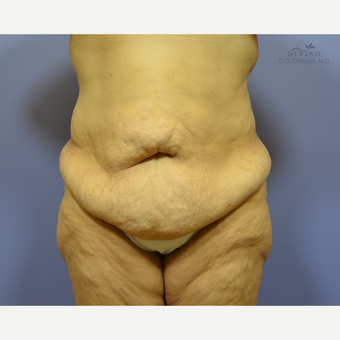 45-54 year old woman treated with Liposuction before 3421412