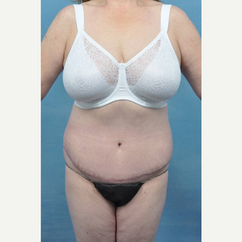 45-54 year old woman treated with Tummy Tuck after 3489505