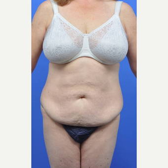 45-54 year old woman treated with Tummy Tuck before 3489505