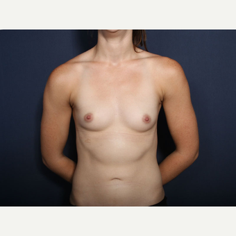18-24 year old woman treated with Augmentation (view 1 of 2) before 3305664