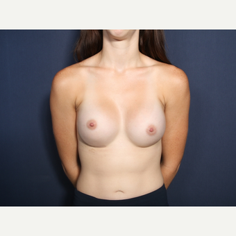 18-24 year old woman treated with Augmentation (view 1 of 2) after 3305664