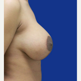 25-34 year old woman treated with Breast Lift with Implants after 3520092