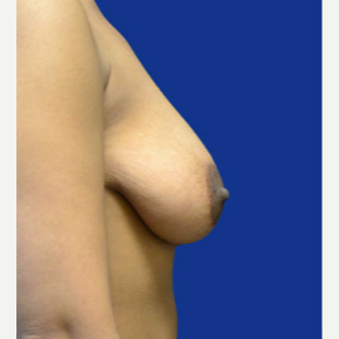25-34 year old woman treated with Breast Lift with Implants before 3520092