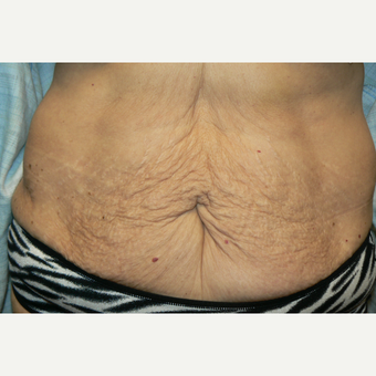 55-64 year old woman treated with Vanquish after 3528614