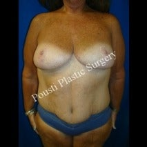 45-54 year old woman treated for Breast Lift after 1526985