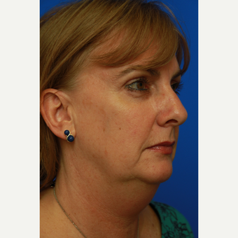 53- year old woman treated with Facelift before 3108559