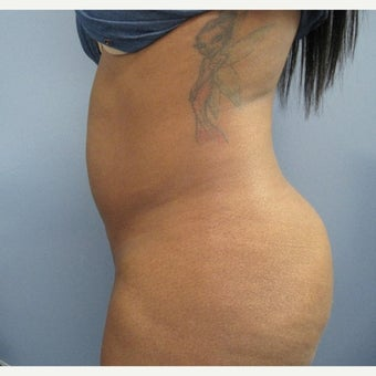25-34 year old woman treated with Fat Transfer