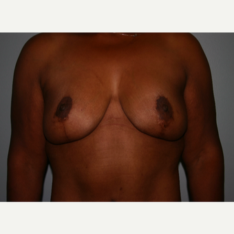 Breast Lift after 100 Pound Weight Loss after 3037987