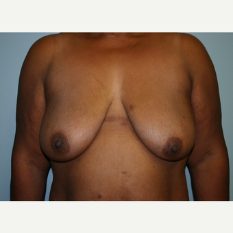 Breast Lift after 100 Pound Weight Loss before 3037987