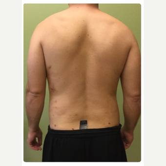 35-44 year old man treated with Smart Lipo after 3098161