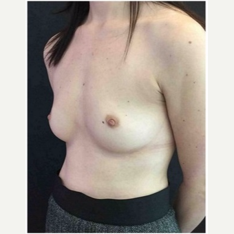 35-44 year old woman treated with Breast Augmentation before 3103447