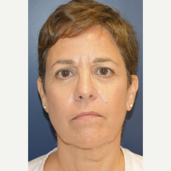 55-64 year old woman treated with Facelift before 3460933