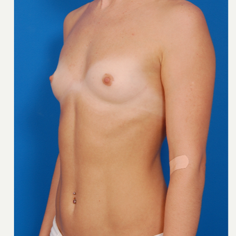 25-34 year old woman treated with Breast Augmentation before 3576978