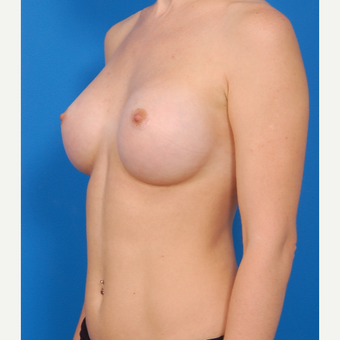 25-34 year old woman treated with Breast Augmentation after 3576978