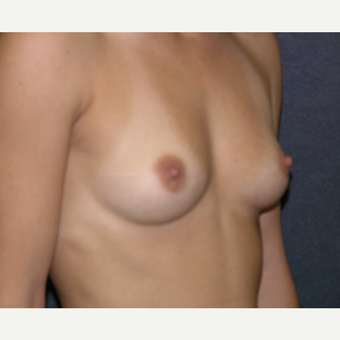 45-54 year old woman treated with Breast Augmentation before 3454818
