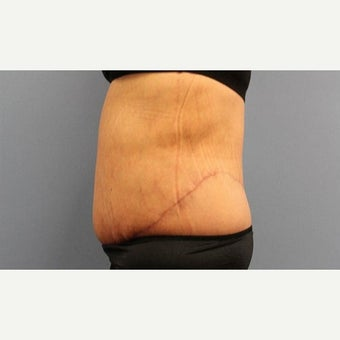55-64 year old woman treated with Body Lift after 2010042