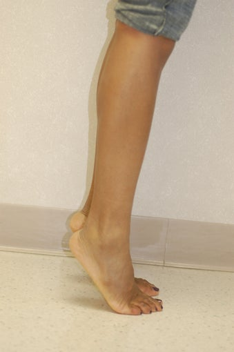 Calf Implants before 905671