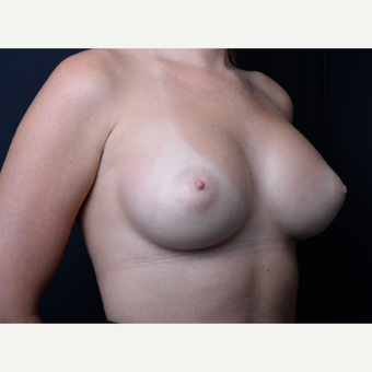 25-34 year old man treated with Breast Augmentation after 3384193