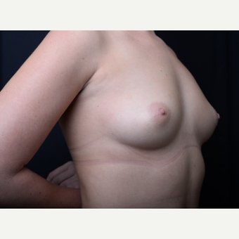 25-34 year old man treated with Breast Augmentation before 3384193