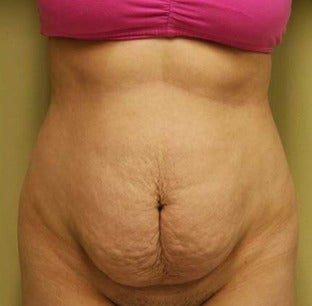 25-34 year old woman treated with Tummy Tuck before 3207502