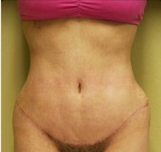 25-34 year old woman treated with Tummy Tuck after 3207502