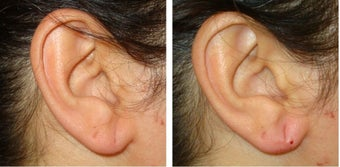40 Year Old Female Treated for Ear Lobe Laxity before 1367297