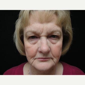 55-64 year old woman treated with Eyelid Surgery before 3823361