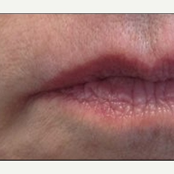 55-64 year old woman treated with Restylane Silk after 3370886