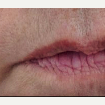 55-64 year old woman treated with Restylane Silk before 3370886