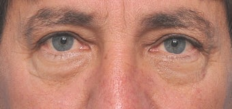 52 Year Old Male Treated For Lower Eyelid Bags