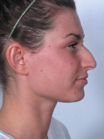 Rhinoplasty before 358922