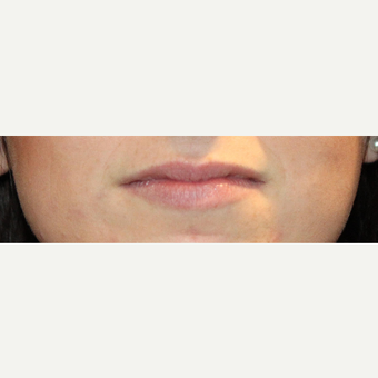 18-24 year old woman treated with Volbella before 3663966