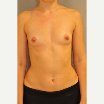 25-34 year old woman treated with Breast Augmentation before 3412476