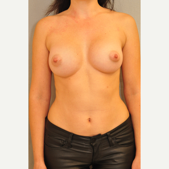 25-34 year old woman treated with Breast Augmentation after 3412476