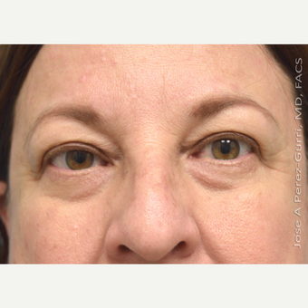 55-64 year old woman treated with Eyelid Surgery before 3265113