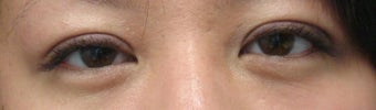 Bilateral Asian Eyelid Surgery after 861145