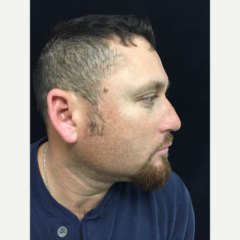 34 year old man treated with Reconstructive Rhinoplasty after 3223752