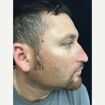 34 year old man treated with Reconstructive Rhinoplasty before 3223752