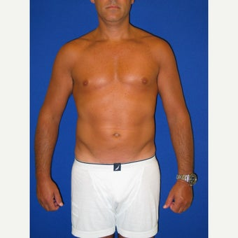 35-44 year old man treated with Vaser Liposuction