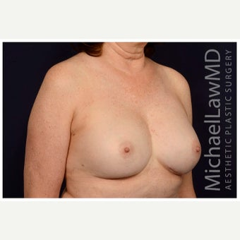 55-64 year old woman treated with Sientra Breast Implants after 2129233