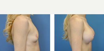 25-34 year old woman treated with Breast Augmentation before 3776352