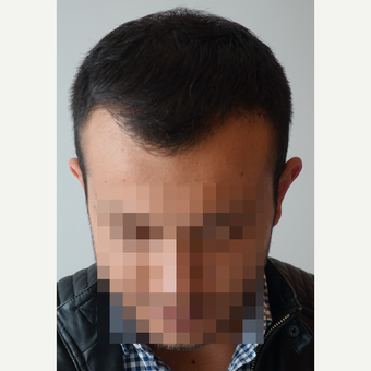 18-24 year old man treated with FUE Hair Transplant after 3729948