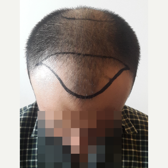 18-24 year old man treated with FUE Hair Transplant before 3729948