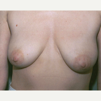 45-54 year old woman treated with Breast Lift before 3153982