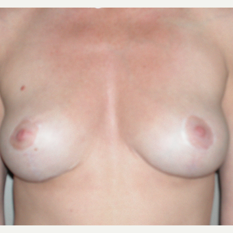 45-54 year old woman treated with Breast Lift after 3153982