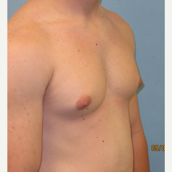 25-34 year old man treated with Male Breast Reduction before 3725390
