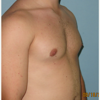 25-34 year old man treated with Male Breast Reduction after 3725390