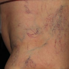 Spider Vein Sclerotherapy Results After Several Sessions before 914997