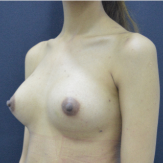18-24 year old woman treated with Breast Fat Transfer