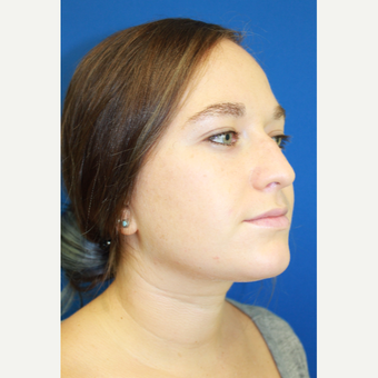 18-24 year old woman treated with Rhinoplasty before 3741484